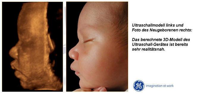 36 SSW Schwangerschaftswoche: Das erlebst Du in